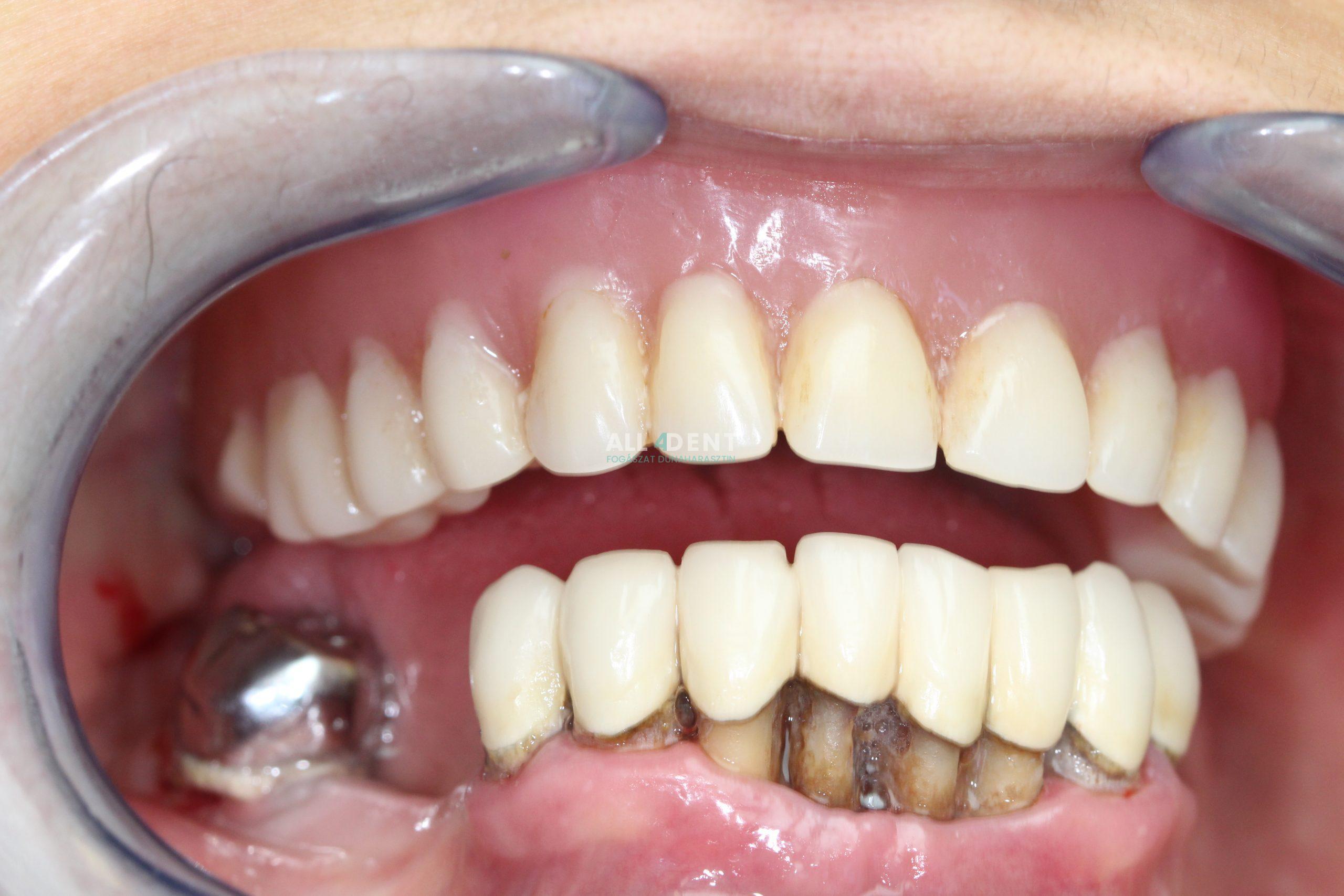 Parodontológiai kezelések